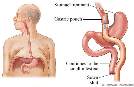 Gastric bypass surgery for obesity