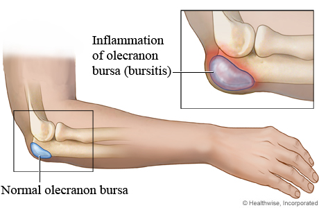 A normal bursa in the elbow compared to an inflamed one (bursitis)