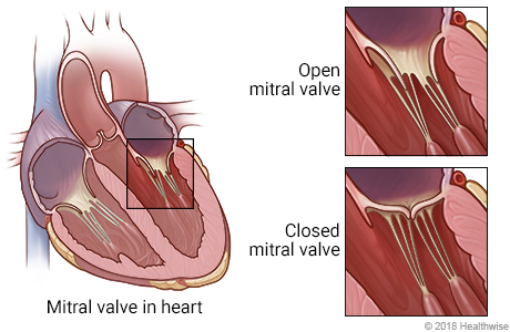 Location of mitral valve in heart, with detail of open and closed mitral valves