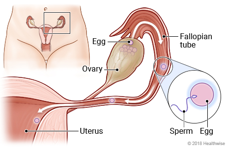 Female reproductive system, with detail of egg passing from ovary to fallopian tube where it is fertilized by sperm
