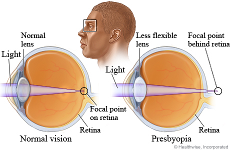 What causes presbyopia (blurred near vision)