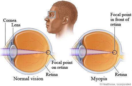 What causes myopia (nearsightedness)