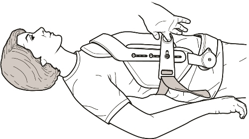 Woman lying ob back with person latching brace about her middle