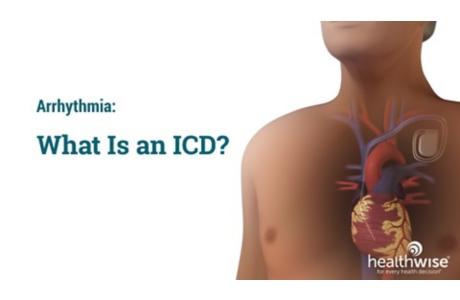 Arrhythmia: What Is an ICD?