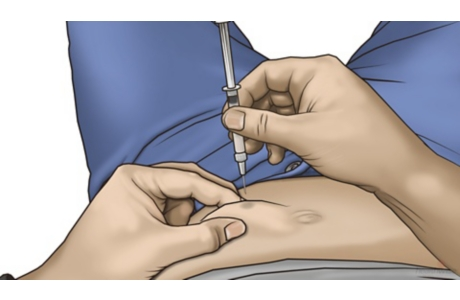 How to Give a Subcutaneous Injection