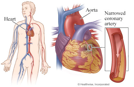 Heart, with detail of coronary artery narrowed by plaque