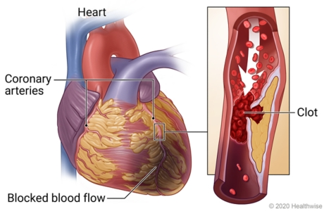Heart showing blocked coronary artery and area with blocked blood flow, with detail of blood clot in artery blocking blood flow