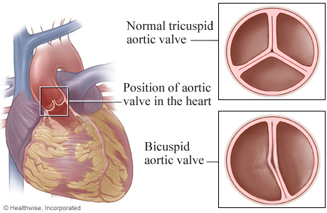Location of aortic valve in heart, with details of a tricuspid valve and a bicuspid valve