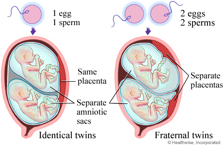 Twin pregnancy types