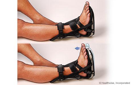Night brace for Achilles tendon problems