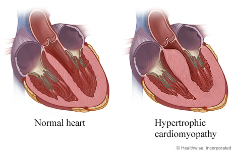 Inside views of normal heart and of heart with thicker walls from hypertrophic cardiomyopathy