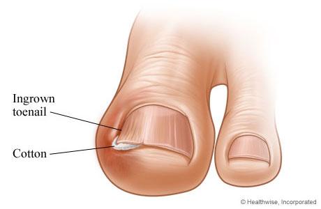 How to treat an ingrown toenail