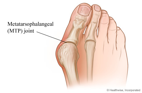 Picture of a bunion and the joint at the base of the big toe