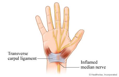 Inflamed median nerve in carpal tunnel syndrome