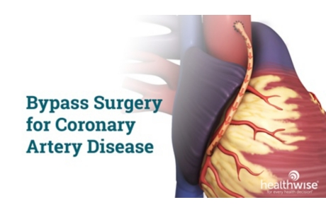 Bypass Surgery for Coronary Artery Disease