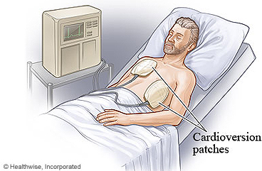 Electrical cardioversion treatment