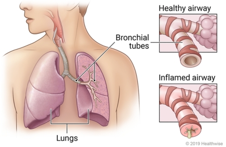 Lungs in chest showing bronchial tubes in left lung, with detail of healthy airway and airway inflamed by bronchitis