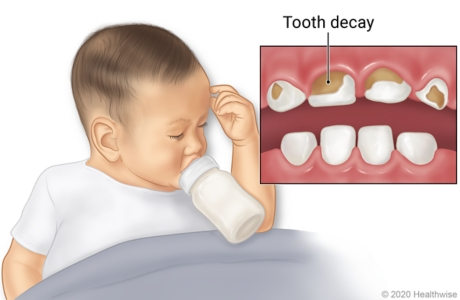 Baby sleeping with bottle in mouth, with detail of mouth showing tooth decay on front, upper teeth