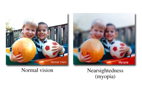 View through normal eye compared to nearsighted eye