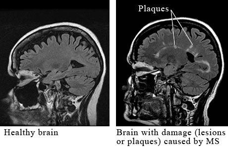 MRI of multiple sclerosis