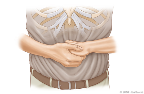 Picture A: Front view of position of hands for Heimlich maneuver in an adult or child