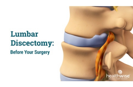 Back Surgery for Herniated Disc