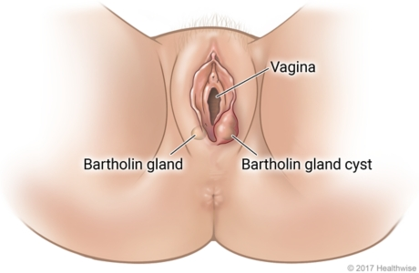 External female genital area, showing Bartholin gland on one side and swollen gland cyst on other side of vagina opening.