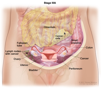 Drawing of stage IIIA shows cancer inside both ovaries that has spread to (a) lymph nodes behind the peritoneum. Also shown is (b) microscopic cancer cells that have spread to the omentum. The small intestine, colon, fallopian tubes, uterus, and bladder are also shown.