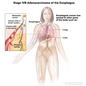 Stage IVB adenocarcinoma of the esophagus; drawing showing other parts of the body where esophagus cancer may spread, including the lung and liver. An inset shows cancer cells spreading from the esophagus, through the blood and lymph system, to another part of the body where metastatic cancer has formed.