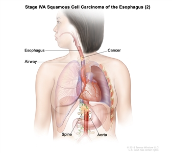 Stage IVA squamous cell carcinoma of the esophagus (2); drawing shows cancer in the esophagus, airway, aorta, and spine.