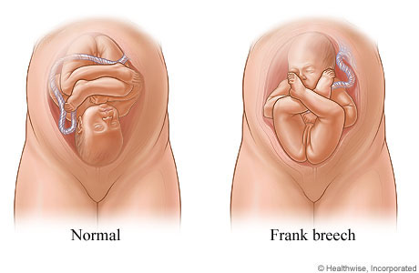 Normal and frank breech positions