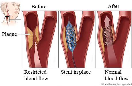 Carotid angioplasty procedure