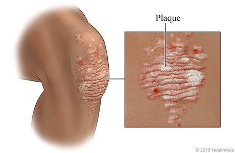 Psoriasis plaque on a knee