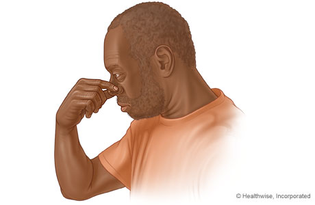 Man pinching his nose to stop a nosebleed